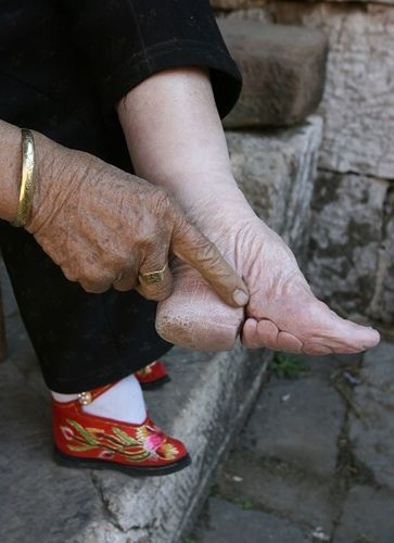"""""""The barbaric practice of foot binding in China began in the 10th century. It was practiced on young girls as young as 6 yrs old. Feet were wrapped in tight bandages and broken so they couldn't grow. Tiny feet were a sign of prestige, beauty and wealt"""