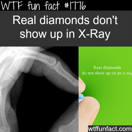 How to tell if it's a real diamond - WTF fun facts: Wtf Facts, Real Diamonds, Wtf Fun Facts, Weird Facts, Xray, Interesting Facts, Funfacts, X Ray, Random Facts