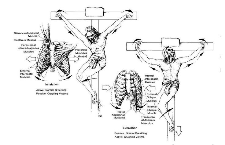 Crucifixion: medical facts. Every believer should read this, its the least we should know about what Jesus had suffered for us, though we can never comprehend the excruciating pain He went through and can never love and appreciate Him enough.: Christian,