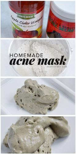 Homemade Acne Mask - This DIY acne mask has just two ingredients and will detoxify your skin while unclogging and shrinking pores. AMAZING.: Diy Face Mask, Acne Face Mask, Diy Acne, Unclogs Pores, Homemade Acne Mask, Clear Skin