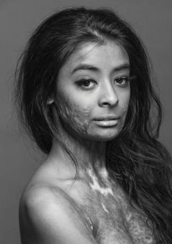 "This beautiful model, Julian, a burn survivor, did this photo shoot to, in her own words, ""prove that scars do not change a person, they make that person who they become."" What a gorgeous woman. BREATHLESS and indeed still BEAUTIFUL <3: Face, B"