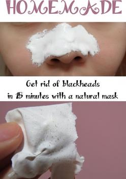Get rid of blackheads in 15 minutes with a natural mask !: Diy Face Mask, 2 3 Teaspoons, Beauty Tips, Skin Care, One Teaspoon, Facemask, 15 Minutes, Blackhead