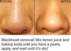 How To: Get Rid Of Blackheads!: Get Rid Of Blackhead, Diy Facial Hair Removal, Skincare, Hair Diy, How To Remove Blackhead, Blackheadremoval, Hair Ideas For Work, Tips, Kitchen
