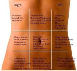 Interesting - stomach pains: Nursing School, Nursing Stuff, Fitness, Nurse, Abdominalpain, Abdominal Pain, Health