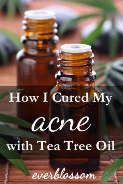 TTO is the best acne treatment I've EVER used. Here's how to use tea tree oil for acne.: Diy Acne Treatment, Acne Essential Oil, Treatment I Ve, Tea Tree Oil Us, Acne Food, Essential Oil For Pimple, Back Acne Cure, Makeup Essential, Best Acne Trea