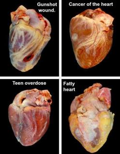 Four human hearts with various afflictions.: Overdose Heart, Medical Stuff, Cancer Heart, Health, Human Hearts, Human Body, Science