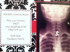 How to turn a horrible childhood accident into an awesome holiday card.: Christmas Cards, Holiday Pin, Friends, Holidays, Minor Surgery, Awesome Christmas, Daughter Swallowed