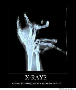 X-Ray's. How else are you going to know it's Broken?: Hand, X Rays, Funny Stuff, Funnies, Humor, Things