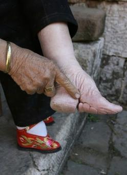 """The barbaric practice of foot binding in China began in the 10th century. It was practiced on young girls as young as 6 yrs old. Feet were wrapped in tight bandages and broken so they couldn't grow. Tiny feet were a sign of prestige, beauty and wealt"