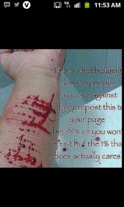 """Look, I don't care about the """"1%"""" thing. I'm reposting this because I care, and I don't want anyone to ever feel this way.: Bullying People, Best Friends, Bullying Repost, Bully People, Beat Bullying, Anti Bullying, Stop Bullying, Bull"""