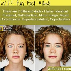 7 Kinds of twins.. so, which one are the Weasleys?  They don't really look all that much alike.: Wtf Fun Fact, Funny Picture, Fun Facts, Wtffunfact, Twin Fact