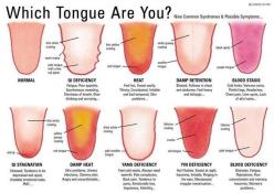 What Does Your Tongue Say About You? | 18 Amazing Body Hacks That Will Improve Your Life: Body, Chinese Medicine, Tongue Diagnosis, Stuff, Fitness, Wellness, Tongue Health, Healthy, Natural