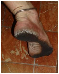 This Dude Didn't Wear Shoes For 8 Years! (Photos): Eeeewwwww Wtf, Dirty Feet, Wear Shoes, Dr. Who, 22 Photos, Man