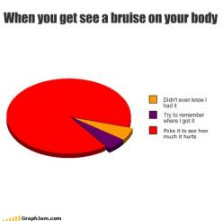 This is so true!: Dancer Problems, My Life, Ice Skating, Soccer Humor, Totally Me, Friend, Hmmm Ouch, Pie Charts