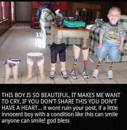 Wanna se him with all of his orthopedic legs when he is an adult.: Amazing, Inspiration, Life, Beautiful, Things, Kids, Smile, People, Little Boys