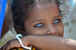 If you know anything about genetics, you should be well aware of the fact that Brown alleles are more dominant than blue alleles and the chances this happening is probably one in a billion. So that's 7 people. In the entire world. Amazing.: Face, Blueeyes